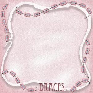 Braces Scrapbook Paper
